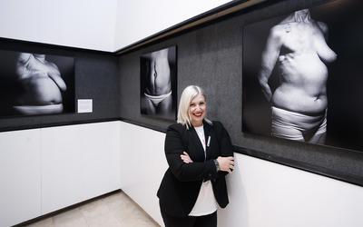 Živjeti s karcinomom: Žene operirane i liječene od raka dojke hrabro stale pred foto-objektiv