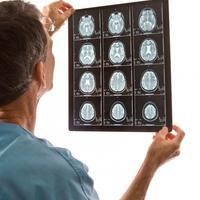 Liječnik, mozak