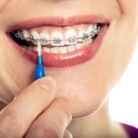 aparatic za zube, Shutterstock 285096689