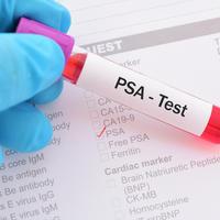 PSA, prostata Shutterstock 725497024