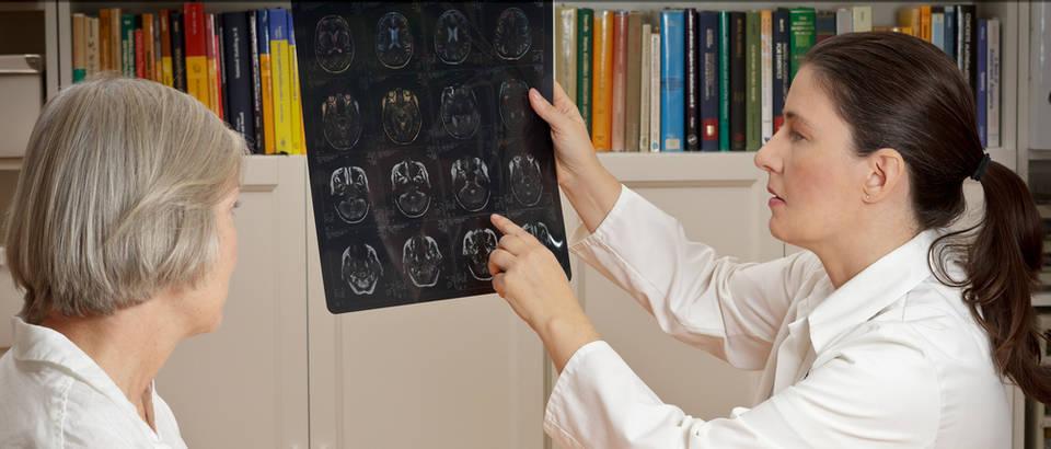 mozak, moždani udar, analiza, pretraga, liječnik, pacijent