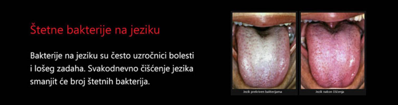Bakterije na jeziku