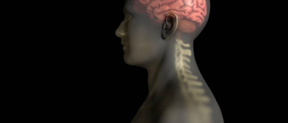 mozak-mozdani-udar-1