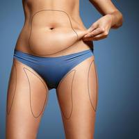Višak kože operacija žena estetska višak kilograma shutterstock 284718569