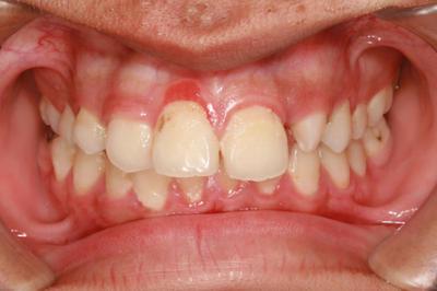 Cena stomatoloskih usluga u beogradu