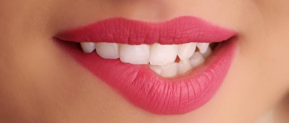 usne-lijepe-zubi-ruz
