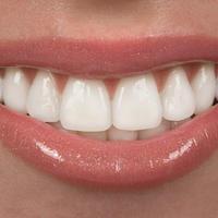 zubi-osmijeh-usne-zubar
