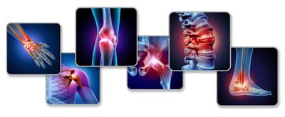 Najčešće vrste artritisa - žene su sklonije jednom, a muškarci drugom obliku