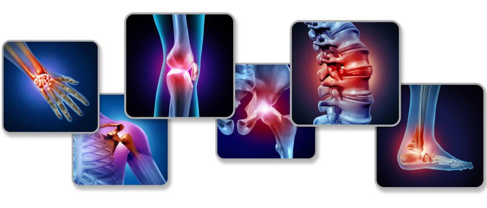 artritis, bol u zglobovima, zglobovi