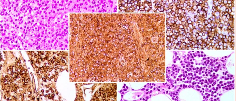 Slike mijelom stanice u kostanoj srzi