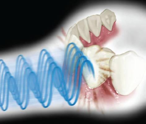 djelovanje ultrazvuka