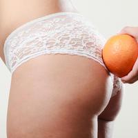 Celulit narančina kora shutterstock 374194801