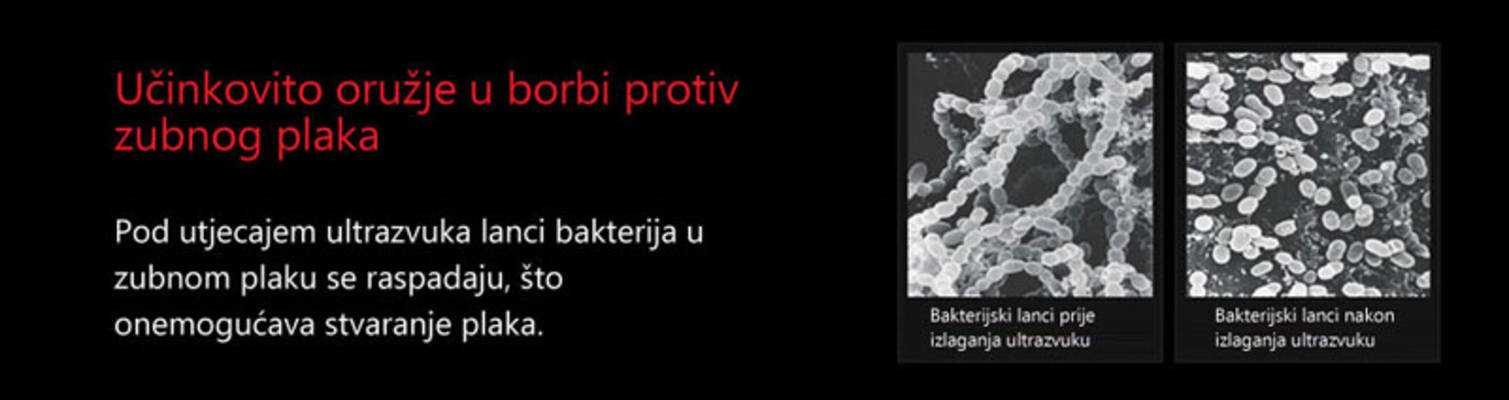 uzv -lanci bakterija