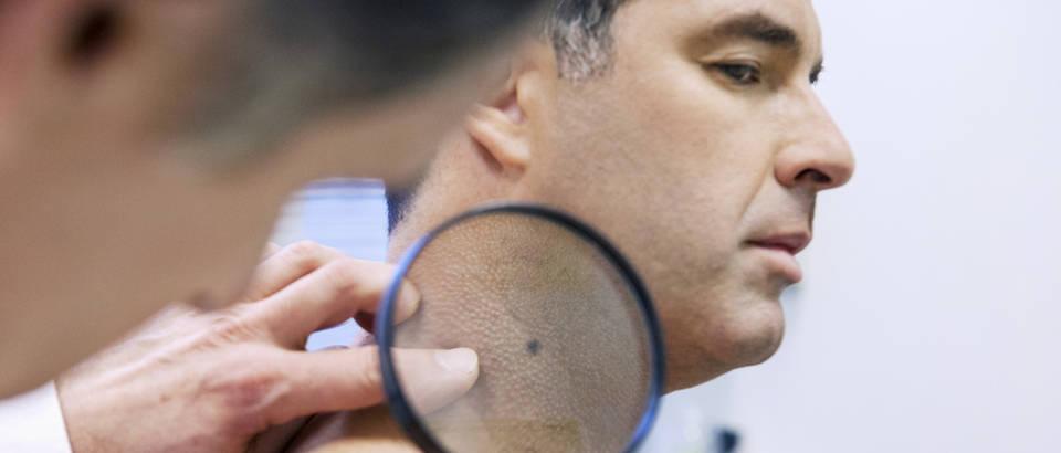 Koža muškarac pregled dermatolog liječnik ordinacija povećalo shutterstock 181679795