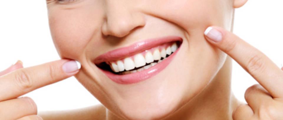 zubi-osmijeh-zena-lijepa7