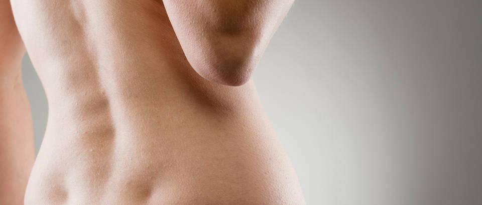 Leđa, žena, koža, Shutterstock 233624923