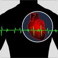 srce-rad-srca-srcani-udar-1