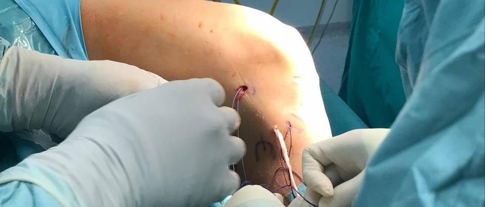 Postavljanje ALL ligamenta