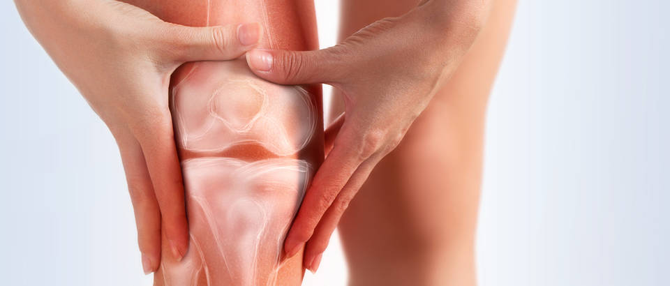 koljeno, bol, artritis
