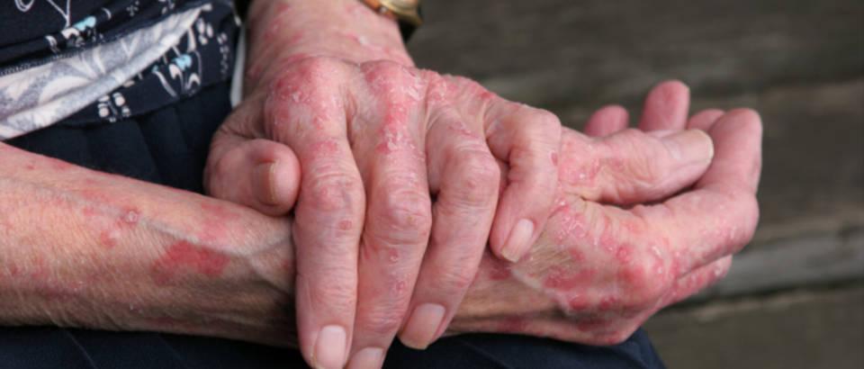 starica, dermatitis, lisaj, ekcem