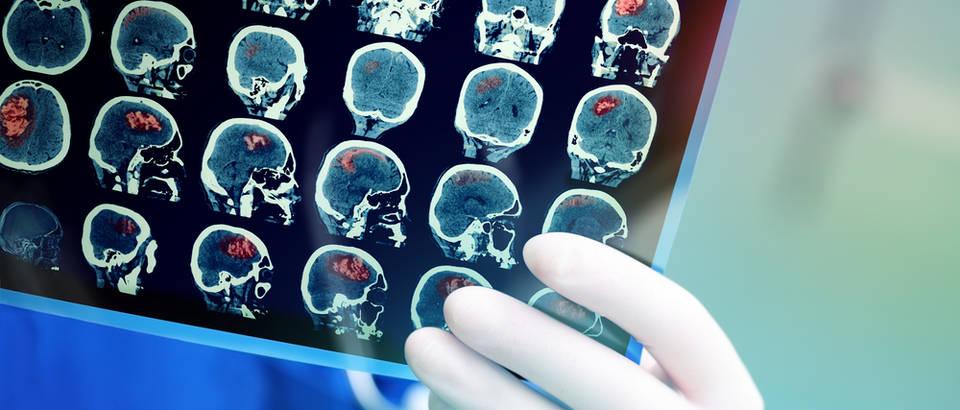 tumor mozga, Shutterstock 390249514