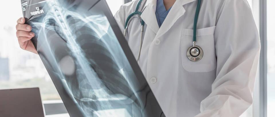 akutni bronhitis, kronicni bronhitis