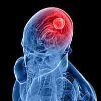 Tumor, mozak, rak