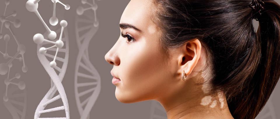 autoimune bolesti, vitiligo
