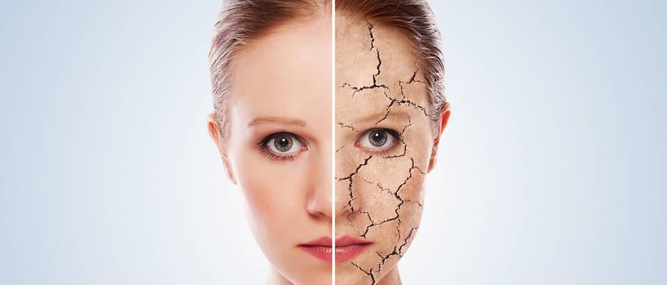 žena ljepota suha koža lice starenje bore shutterstock 100133654