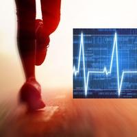 trcanje, ritam srca, bilo, srce, puls, kardiogram