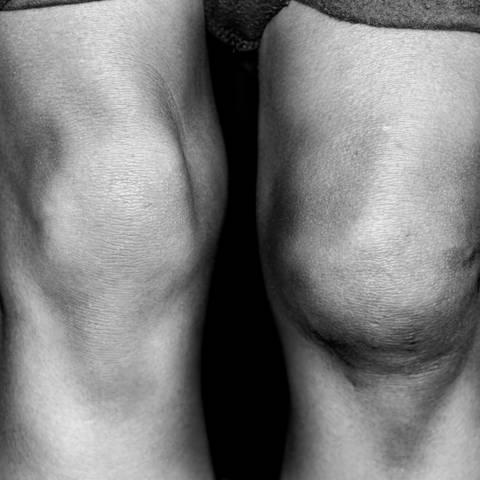 upala zglobova koljena