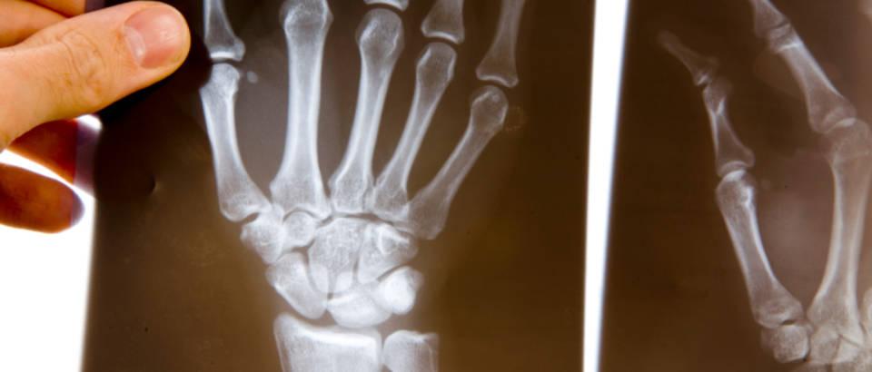 saka, kosti, rentgen
