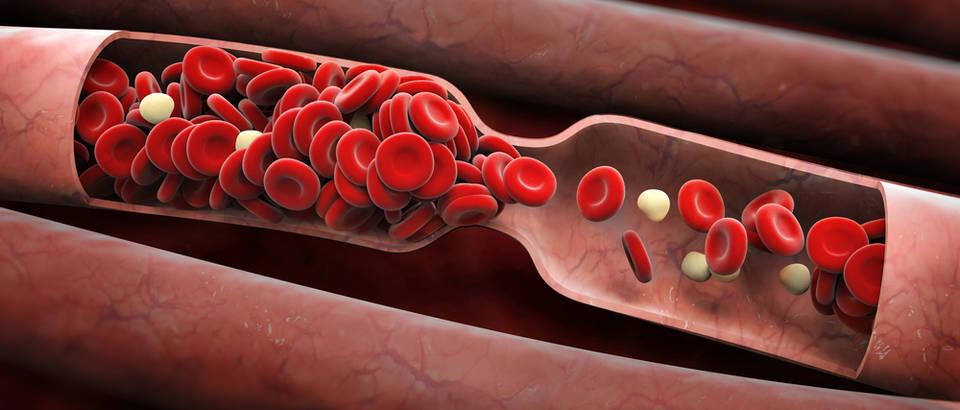 Image result for Vrste krvnih ugrušaka: arterijski i venski