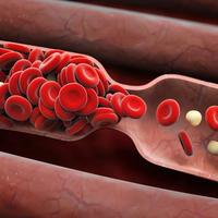 krvni ugrusci, Shutterstock 295255976