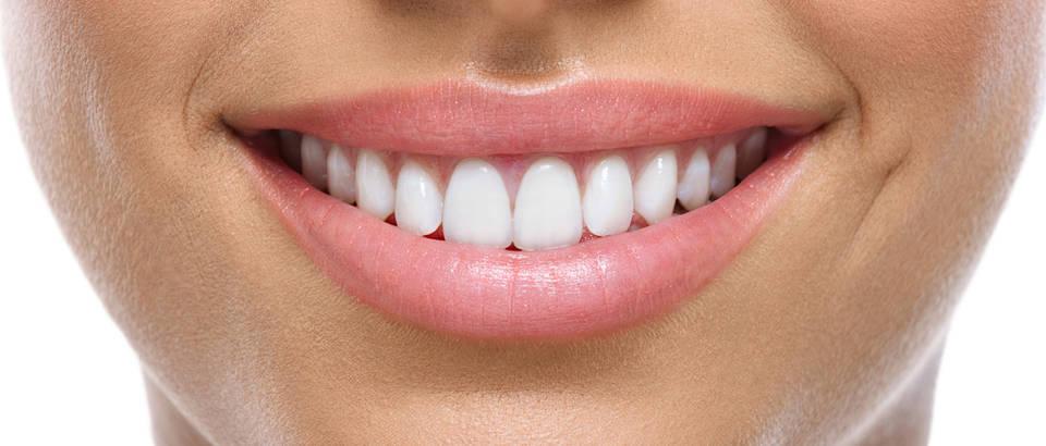 Zubi osmijeh usne shutterstock 151189646