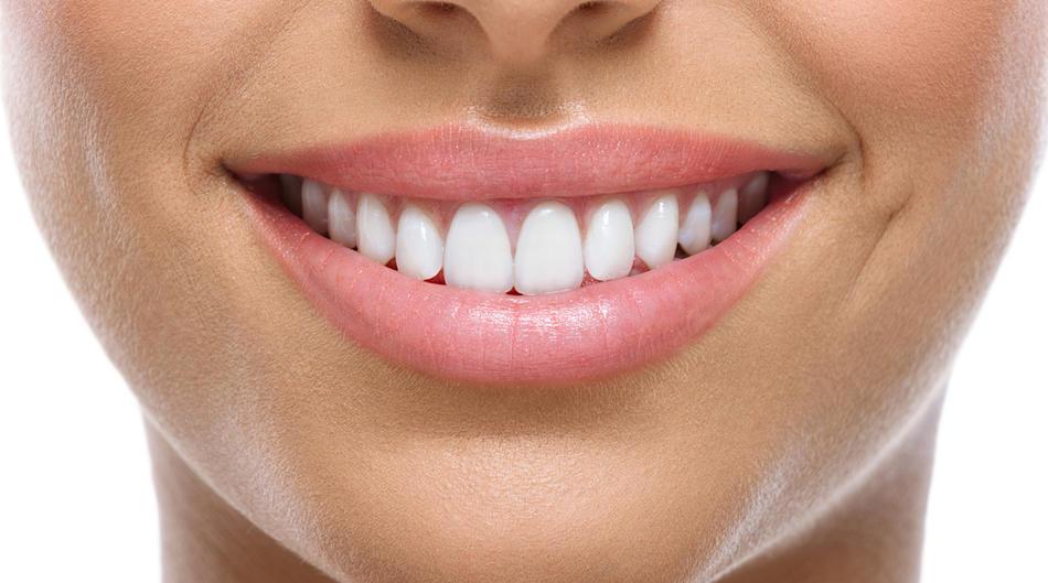 Цене козметичке стоматологије