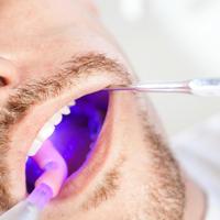 zubni kamenac, stomatolog, zubi, pregled, ultraljubicasto svjetlo