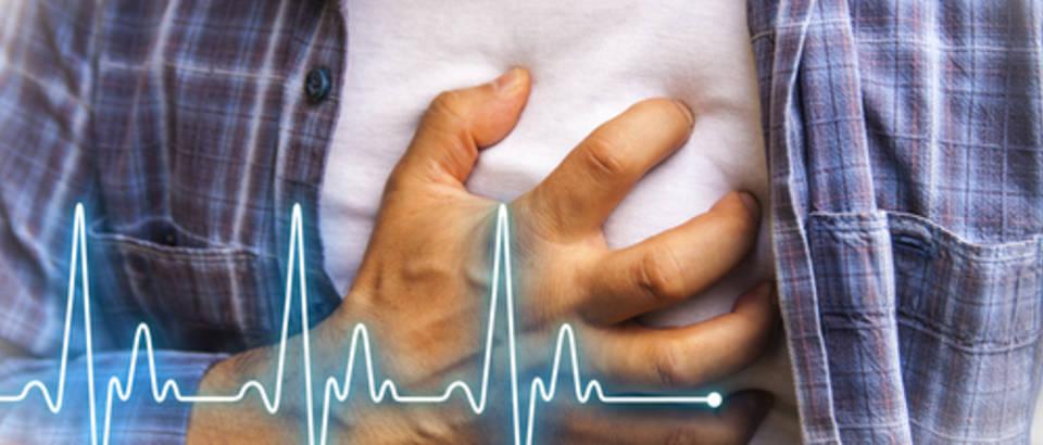 Резултат слика за srčani udar