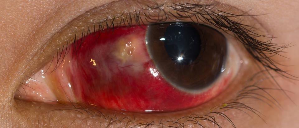 Subkonjunktivalna hemoragija, krvarenje oka