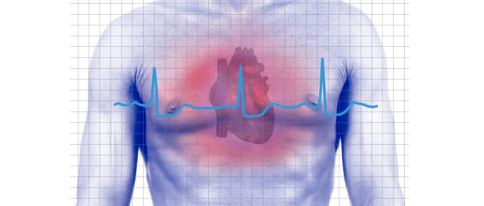 srce-udar-srcani-medicina-puls
