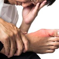 Giht bol zglob stopalo kost ruka shutterstock 234906937