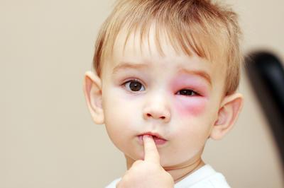 Ose i stršljeni najopasniji su u kasno ljeto i jesen - prepoznajte na vrijeme fatalnu reakciju na ubod kod djeteta!