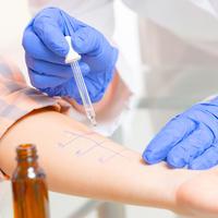 Alergija test liječnik shuterstock