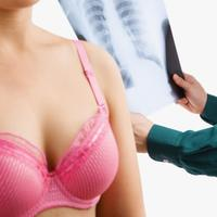 karcinom-rak-dojke-3