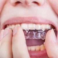 udlaga za zube, zubi, Shutterstock 449371636