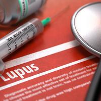 Lupus shutterstock