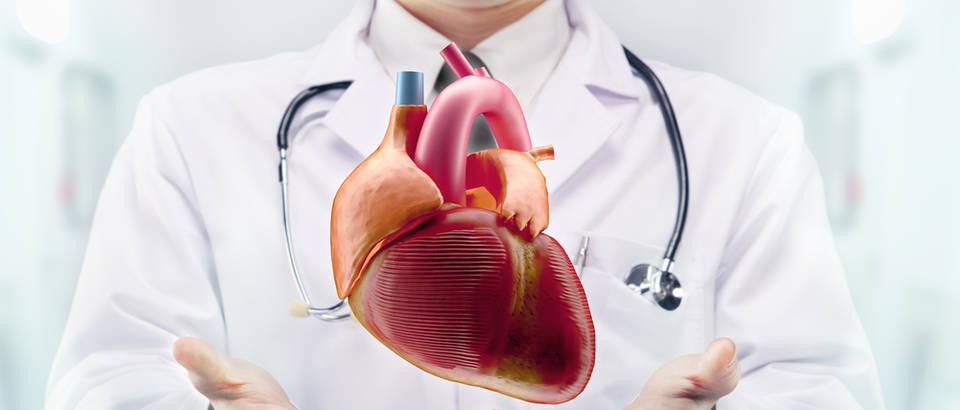 srce, srcani udar