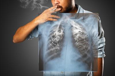 Vodič za pacijente za preventivni CT pregled pluća: Gdje na pretragu, kako do nalaza...