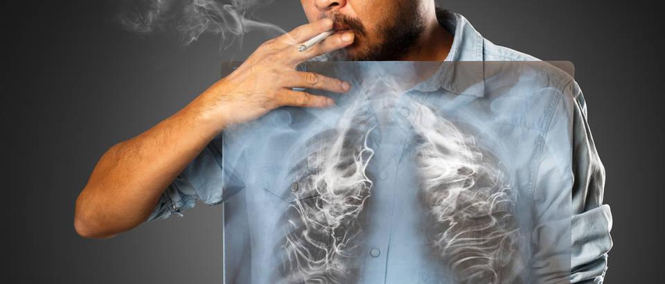 cigareta, rak pluca, Shutterstock 286789925