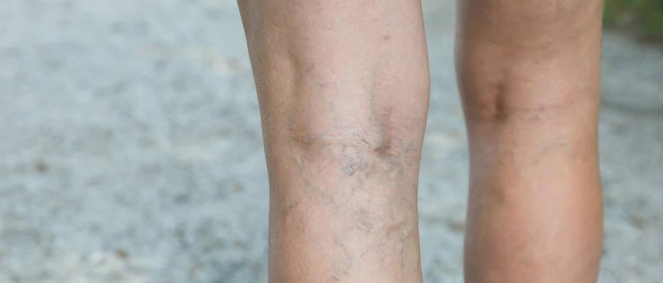Tromboza koljena noge shutterstock 303054314